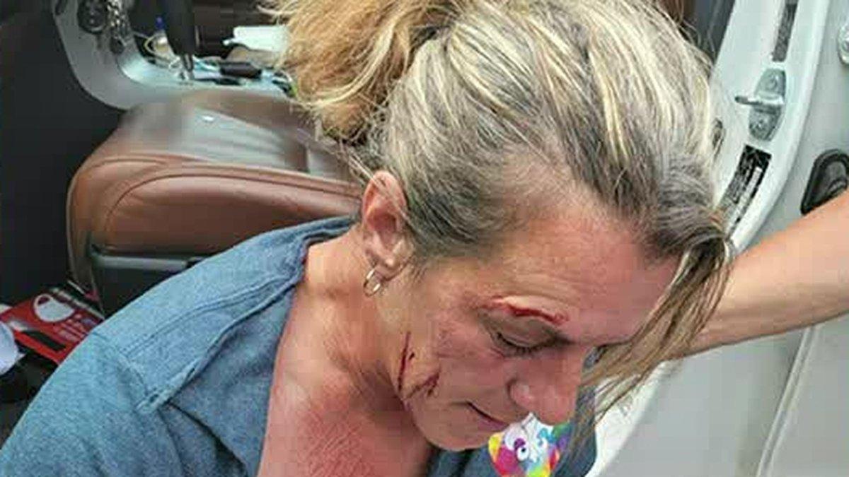 Authorities investigating assault on Cajun Navy volunteer.